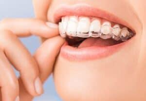 ליישר שיניים