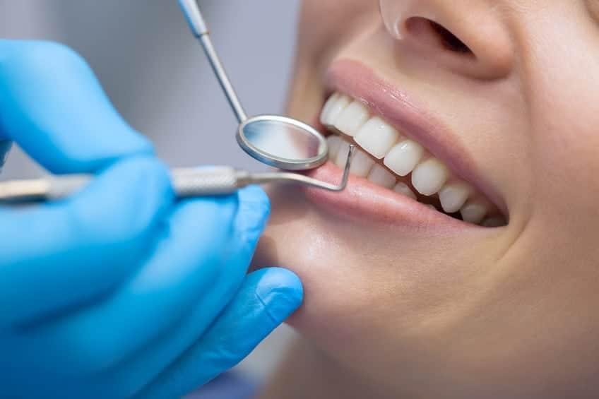 טיפולים הלבנת שיניים