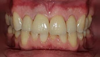 הלבנת שיניים - לפני