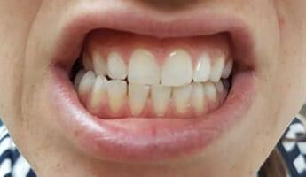 הלבנת שיניים - אחרי