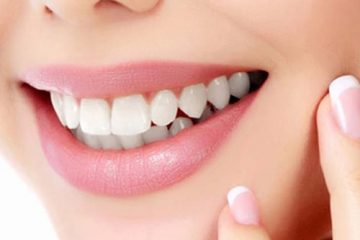 יישור שיניים עם סמכים