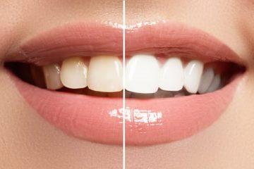 הלבנת שיניים לחיוך לבן ובריא